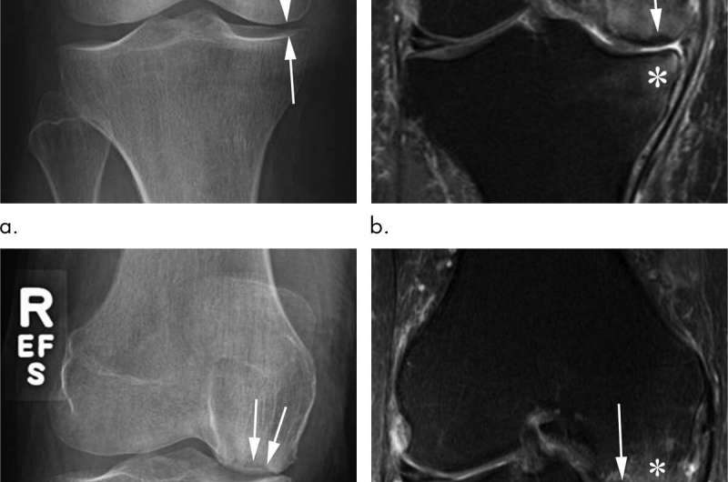 Steroid injections of hip and knee may damage joints