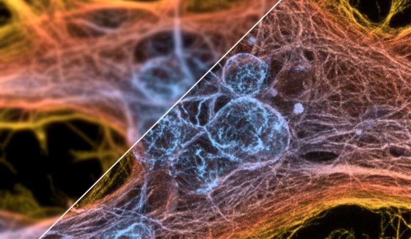 Universal algorithm set to boost microscopes