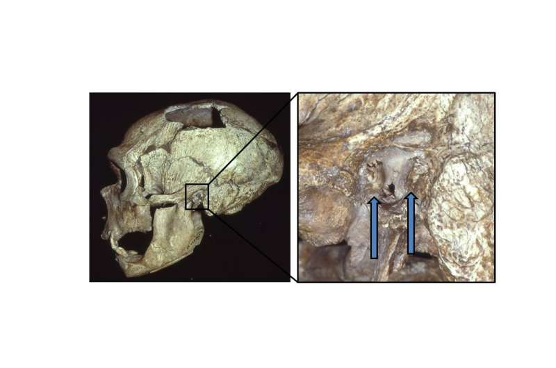 Neanderthals commonly suffered from 'swimmer's ear'
