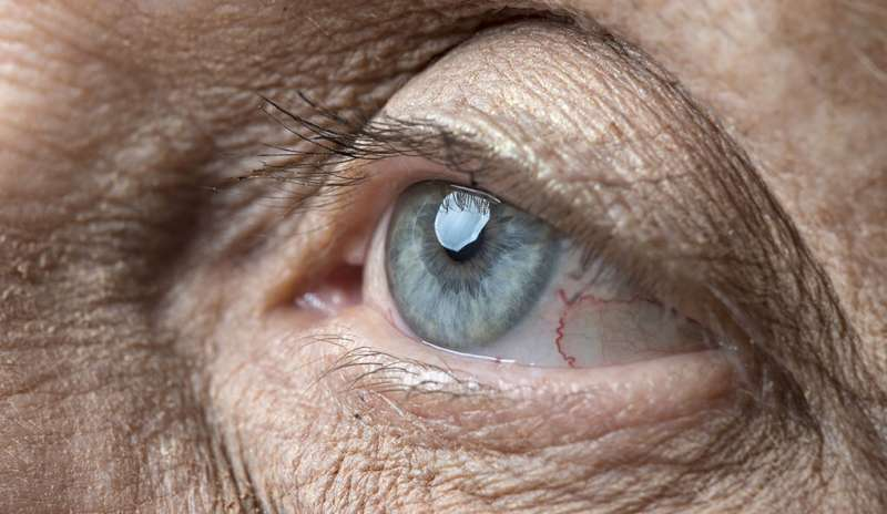 Researchers find cells linked to leading cause of blindness in elderly