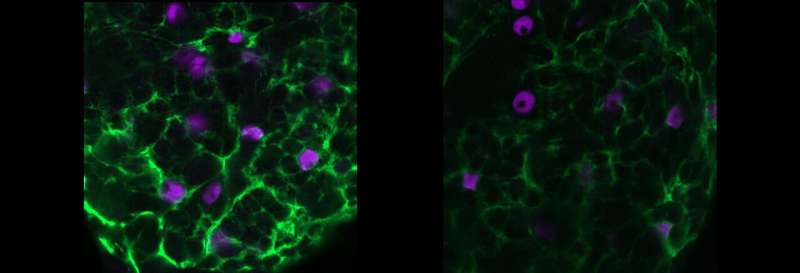Study reveals how glial cells may play key epilepsy role
