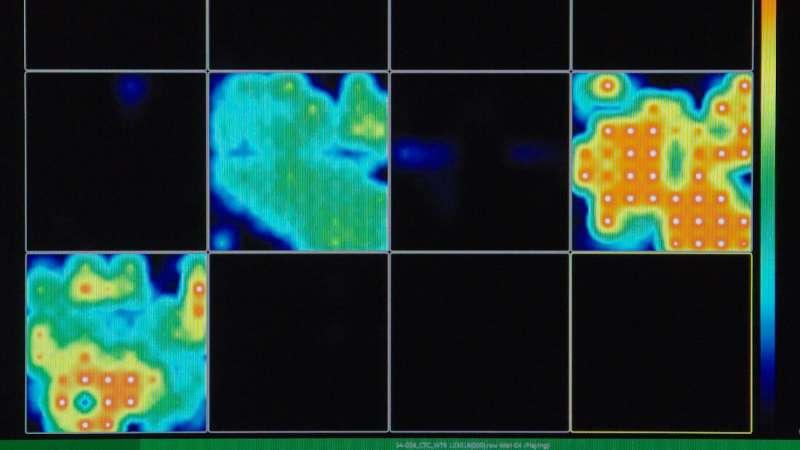 Brain waves detected in mini-brains grown in a dish