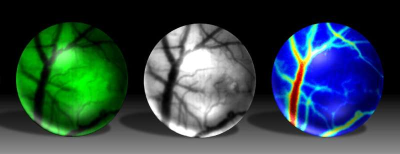 Mini microscope is the new GoPro for studies of brain disease in living mice
