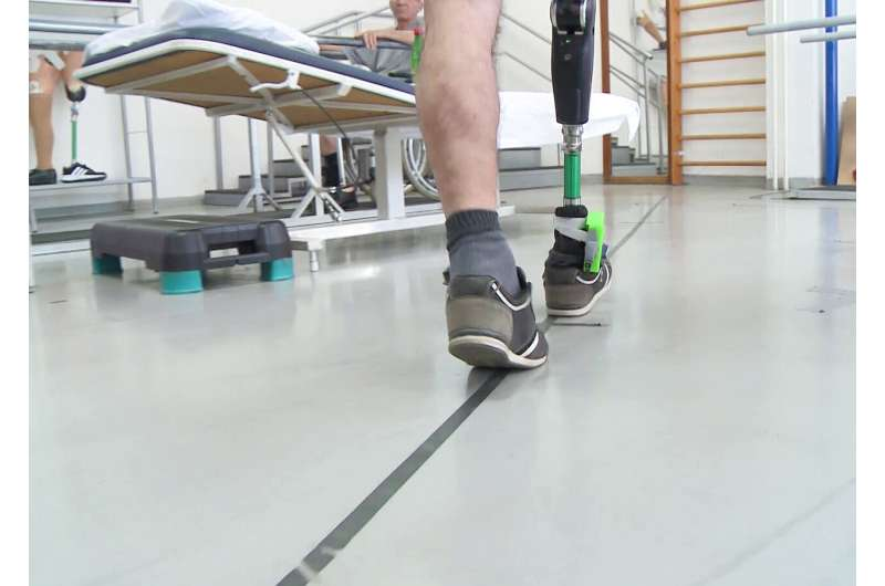 Nerve-stimulating leg prosthesis improves movement and functionality in amputees