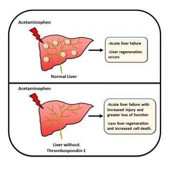 Scientists find new therapy target for drug-induced liver failure