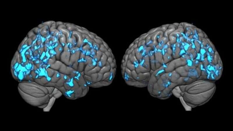 Deep brain stimulation eases Parkinson's disease symptoms by boosting dopamine