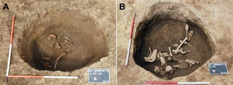 Earliest evidence of artificial cranial deformation in Croatia during 5th-6th century