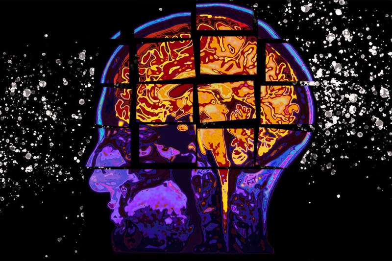Model predicts cognitive decline due to Alzheimer's, up to two years out
