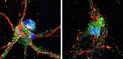 Los investigadores identifican la proteína cerebral crucial para la recuperación de un accidente cerebrovascular