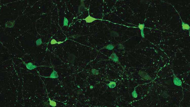 Researchers identify new hunger pathway in the brain