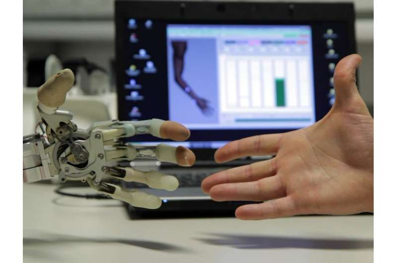 Bionic reconstruction: after amputation of a hand, muscles can be repurposed using nerve transfers