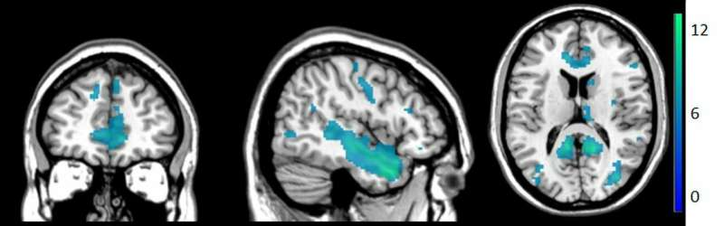 How brains distinguish between self-touch and touch by others