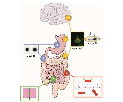The involvement of the gut in Parkinson's disease: hype or hope?