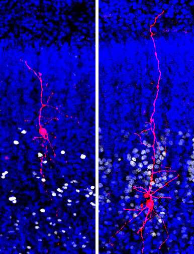 Brain changes in autism traced to specific cell types