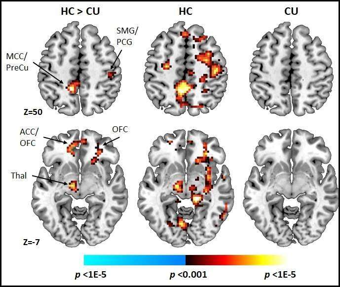 Early and regular cannabis use by youth is associated with alteration in brain circuits that support cognitive control