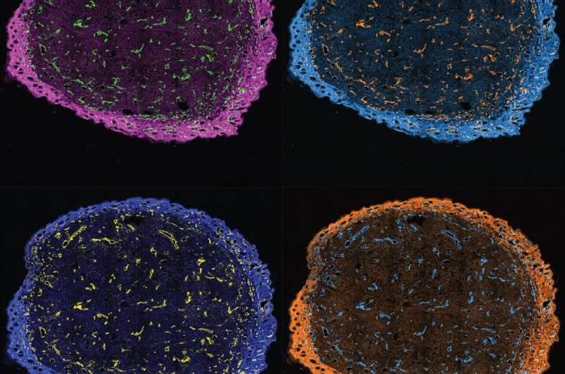 Confining cell-killing treatments to tumors
