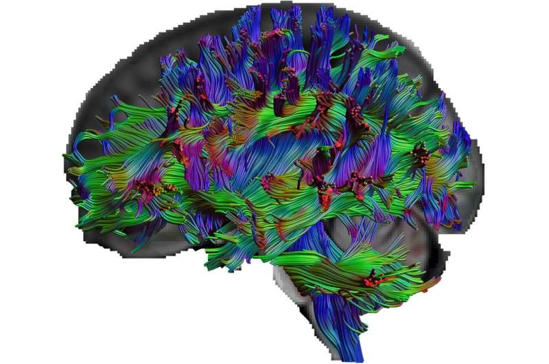 What the brains of people with excellent general knowledge look like