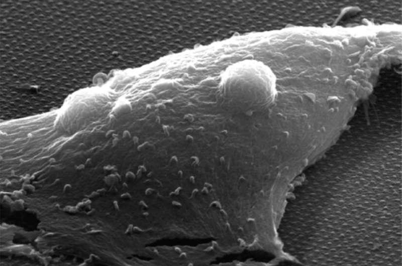Novel nanoprobes show promise for optical monitoring of neural activity