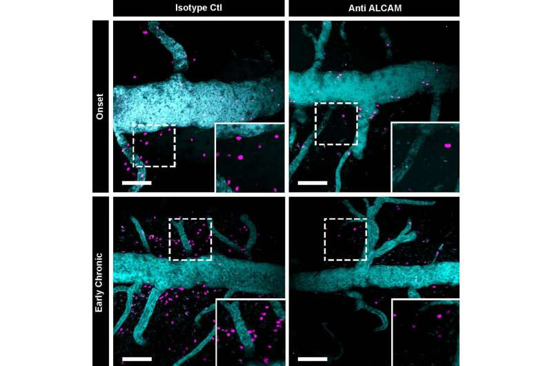 Slowing the progression of multiple sclerosis