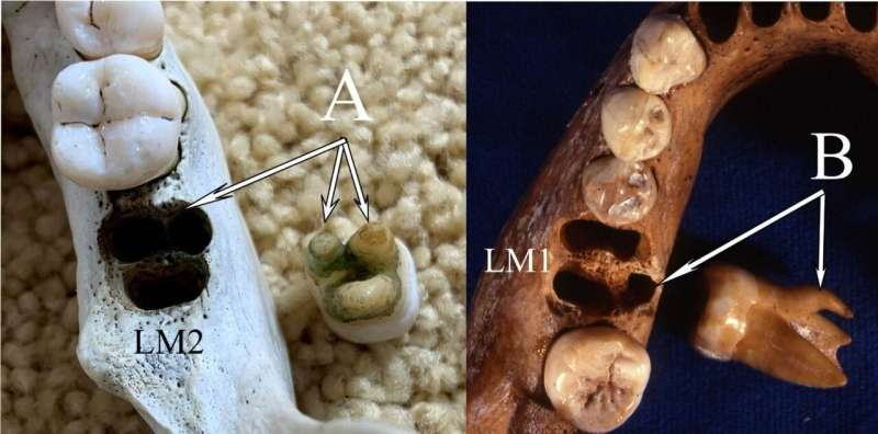 A study refutes the similarities between the teeth of Denisovans and modern Asians