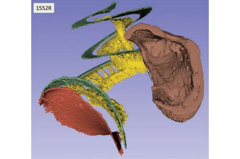 Unprecedented 3-D images of human ear anatomy for hearing restoration