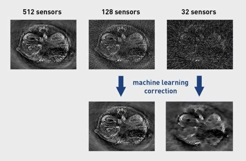 Artificial intelligence improves biomedical imaging