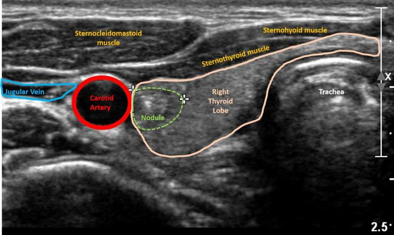 Using artificial intelligence to predict risk of thyroid cancer on ultrasound