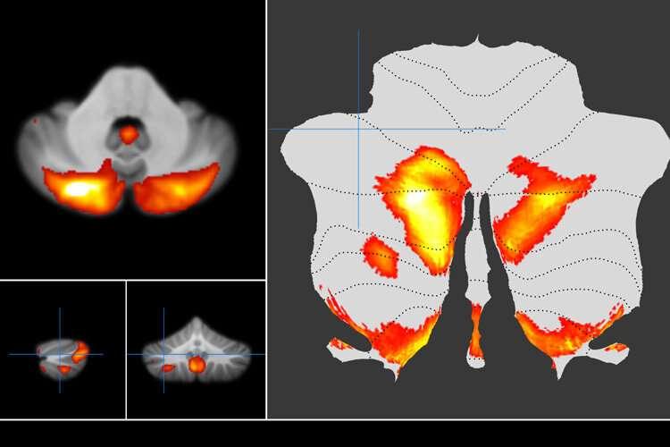 Scientists map our underappreciated 'little brain'