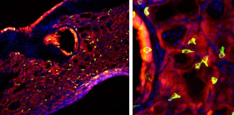 A bad bout of flu triggers 'taste bud cells' to grow in the lungs