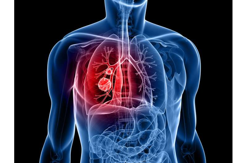 Adding immunotherapy after initial treatment can benefit metastatic lung cancer patients
