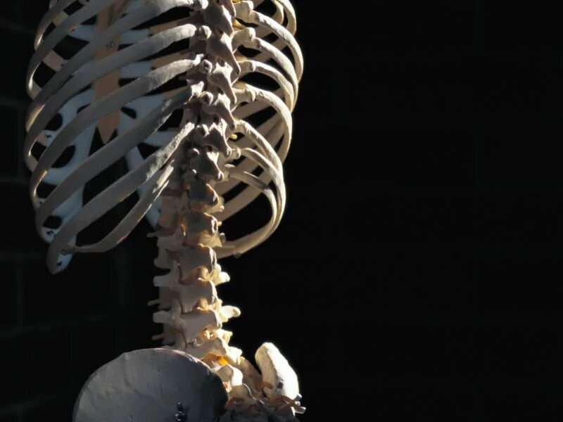 Adults with cerebral palsy at higher risk for osteoporosis