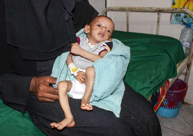 A malnourished child receiving treatment at a hospital in Yemen: a UN report said more than 821 million people worldwide suffere
