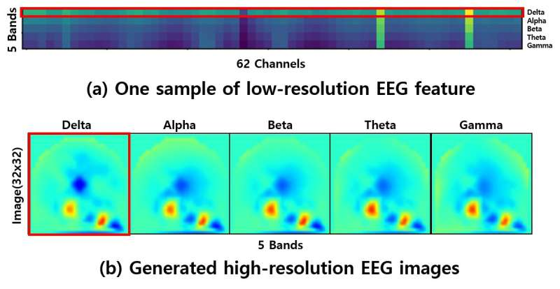 A new deep learning model for EEG-based emotion recognition