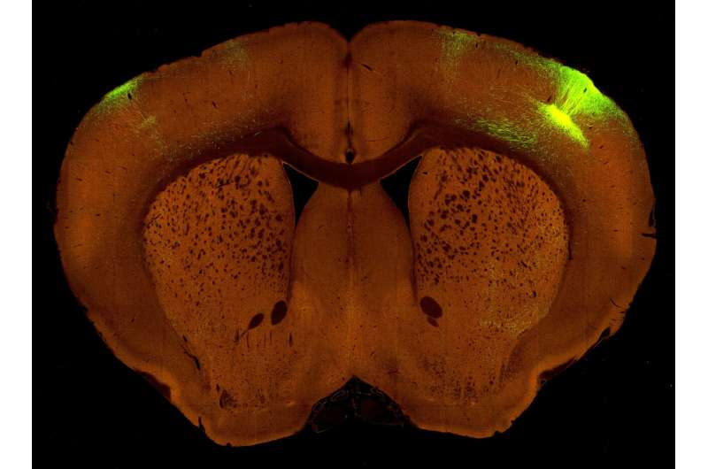A new high-resolution map of how the brain is wired