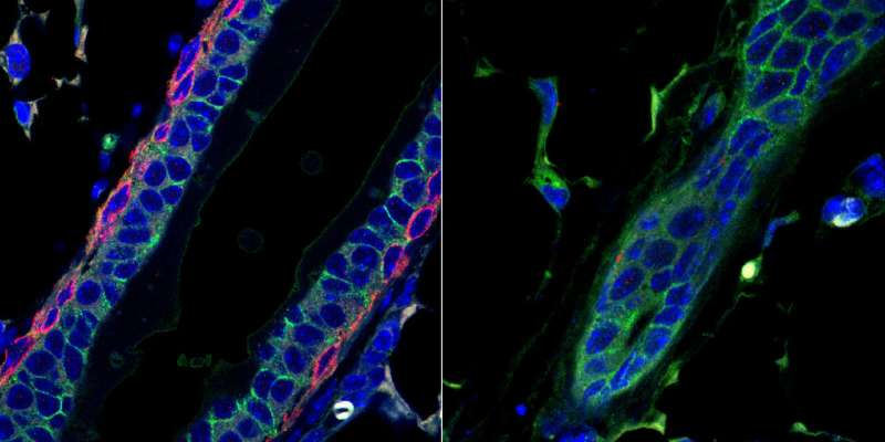 A new role for a triple-negative breast cancer target