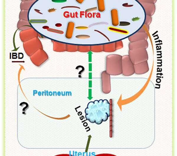 Antibiotics may treat endometriosis
