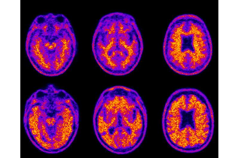 As plaque deposits increase in the aging brain, money management falters