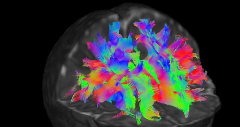 Baby brain scans made available online to advance research