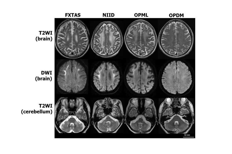 Beyond finding a gene: Same repeated stretch of DNA in three neurodegenerative diseases