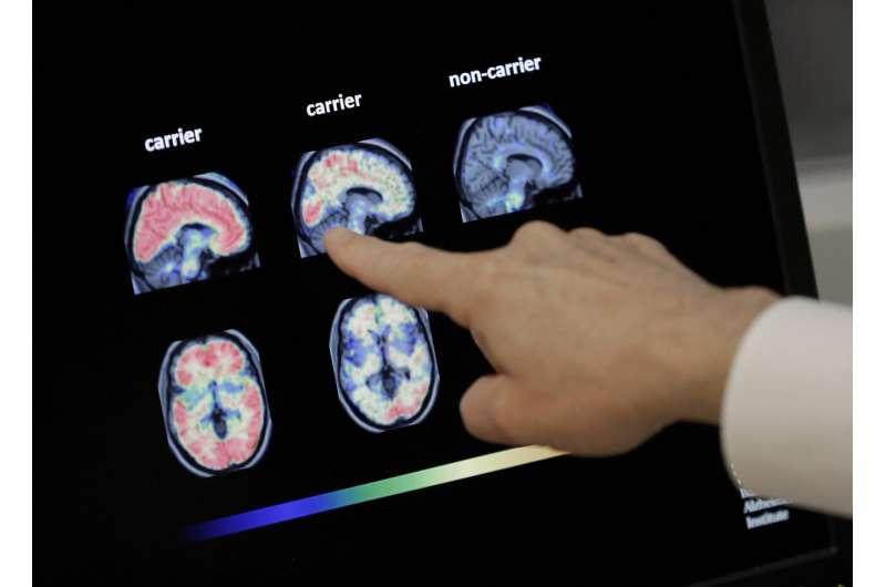 Biogen reanalyzes studies, presses ahead on Alzheimer's drug