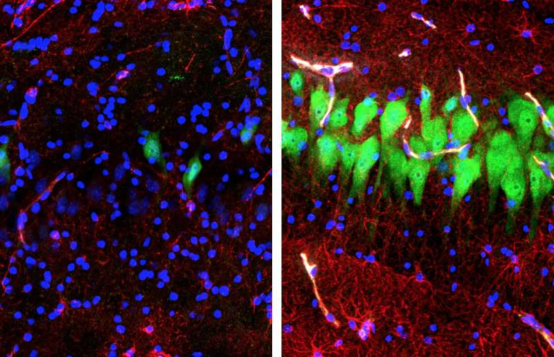 BRAIN Initiative tool may transform how scientists study brain structure and function