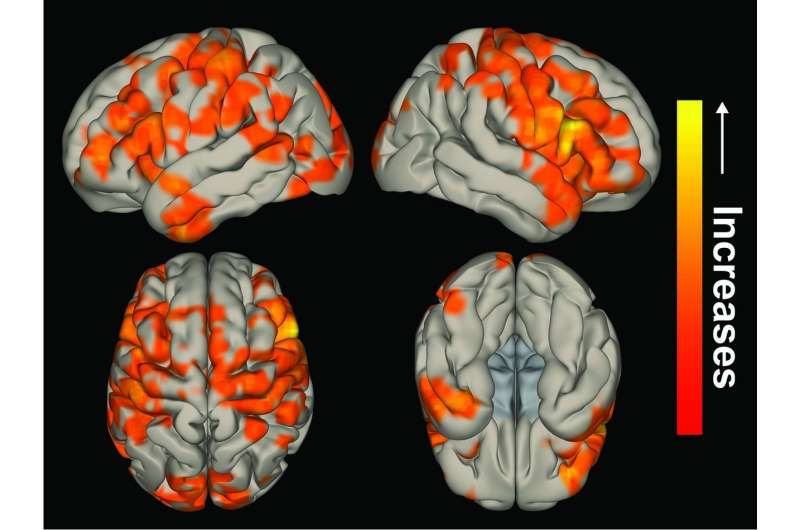 Brain network activity can improve in epilepsy patients after surgery