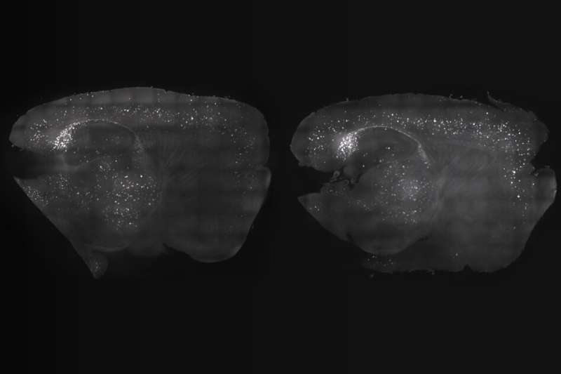 Brain wave stimulation may improve Alzheimer's symptoms