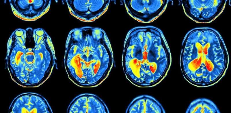 Can science explain consciousness?