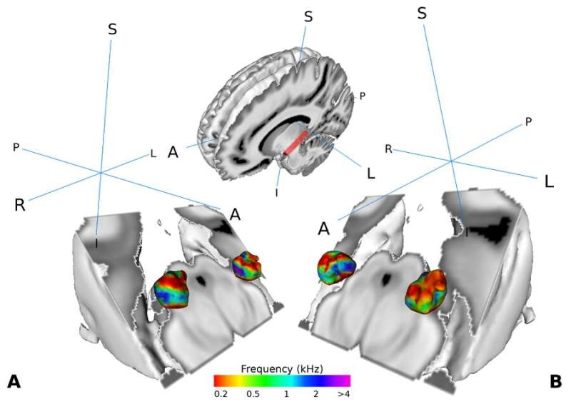 Can you hear what I say? – New findings on human speech recognition