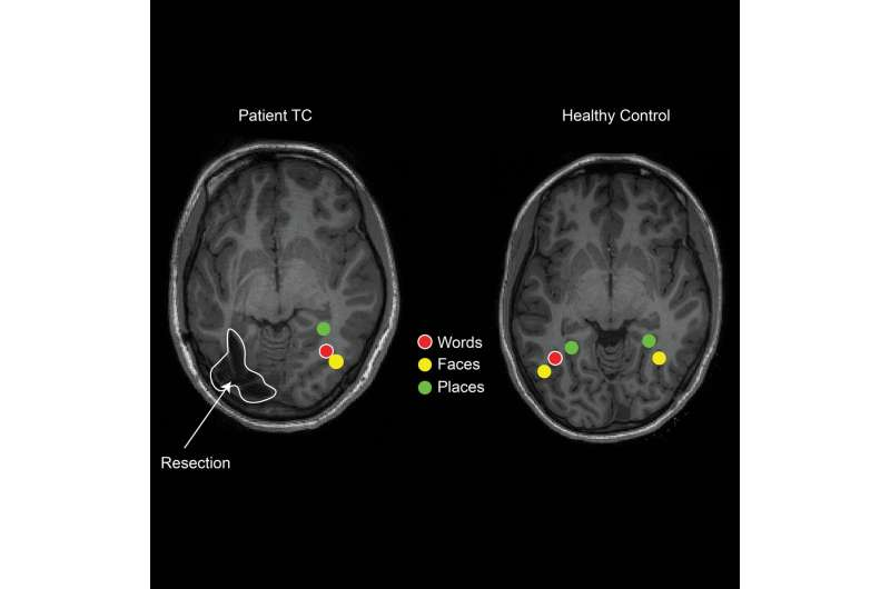 Children's brains reorganize after epilepsy surgery to retain visual perception