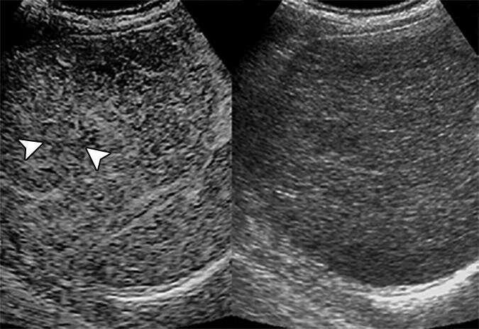 Contrast-enhanced ultrasound predicts nodule transformation to hepatocellular carcinoma