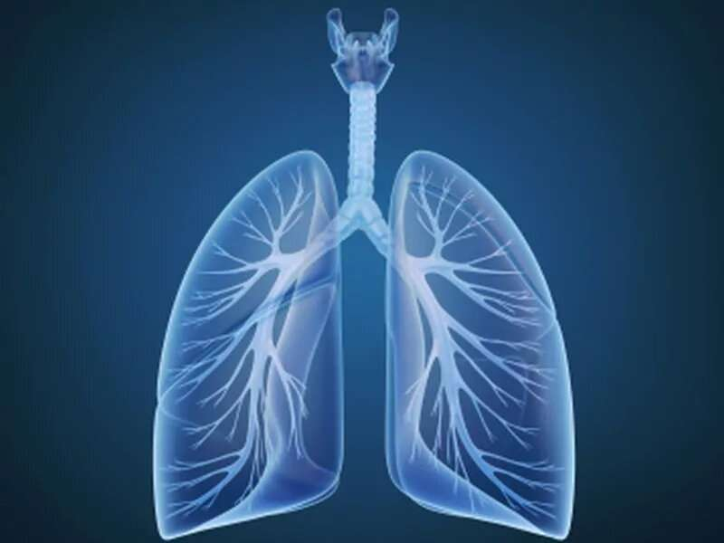 COPD, ILD patients may not benefit from bilateral lung transplant listing