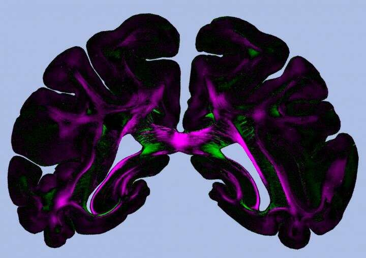 Diattenuation imaging -- a promising imaging technique for brain research
