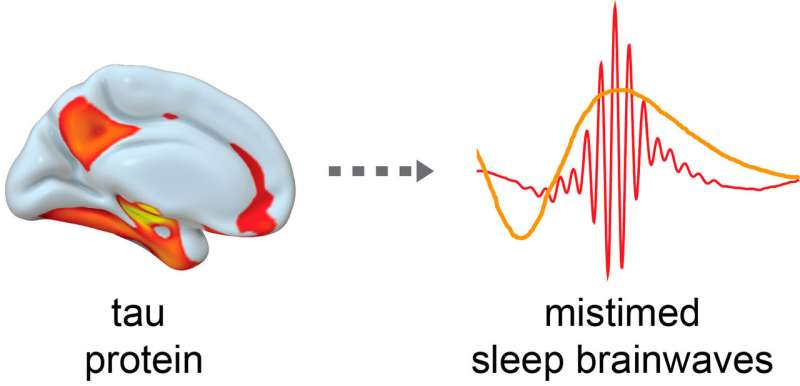 Disrupted sleep in one's 50s, 60s raises risk of Alzheimer's disease